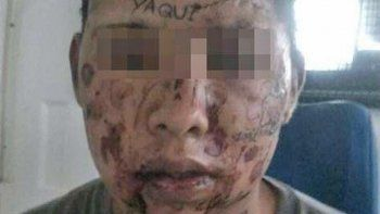 Gustavo Marín recibe un tratamiento láser para borrarse los tatuajes.
