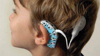 Se perdió un aparato que ayuda a escuchar a un niño hipoacúsico