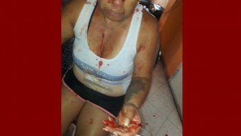 La mujer herida tras el violento ataque de su ex pareja en Cutral Co.