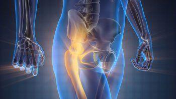 En la actualidad, una de cada tres mujeres y uno de cada cinco hombres se quiebran a causa de la osteoporosis.
