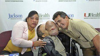 El chico fue operado en Miami y a pesar de que la intervención fue exitosa, falleció debido a una insuficiencia renal y pulmonar.