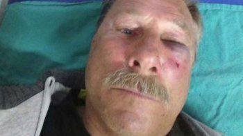 Carlos Prío sufrió importantes golpes en el rostro por el ataque.
