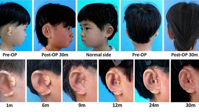 Los niños recibieron la tecnología experimental ya que sufren microtia.