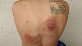 Los presos mostraron las lesiones que sufrieron en la espalda.