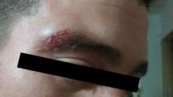 denuncian a la policia por dos golpizas en plena calle