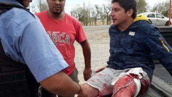 Lucas, el hijo del dueño del local, recibió una puñalada en una pierna.