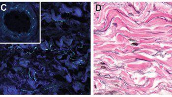 Científicos anuncian el hallazgo de un nuevo órgano en el cuerpo
