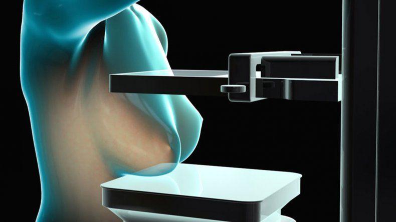 Diseñan un mamógrafo que no necesita rayos X