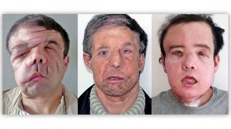 En noviembre le quitaron el rostro trasplantado y durante dos meses permaneció internado sin cara y sin poder ver
