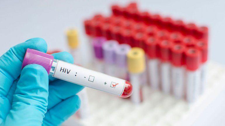 Los nuevos casos de VIH se detectan más temprano