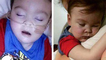dos paises en puja por la vida de un bebe desconectado por la justicia