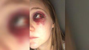 defendio a su amiga de los golpes del novio y recibio una trompada