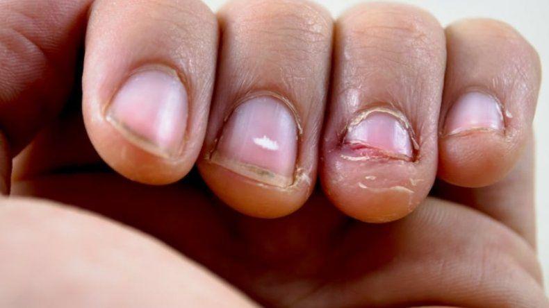 Casi se muere por comerse las uñas