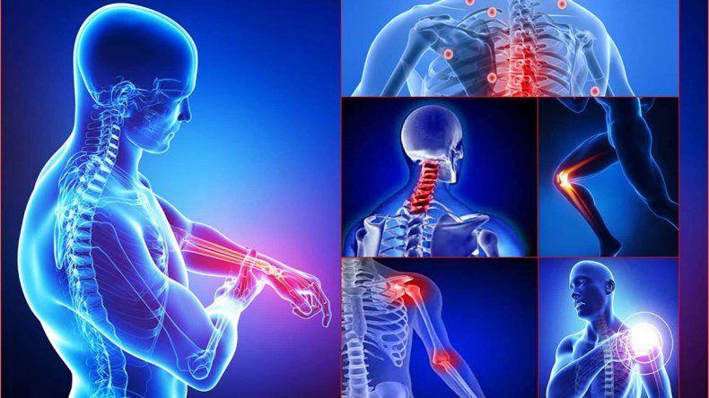 Fibromialgia, mucho más que unos cuantos dolores