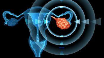Cáncer de ovario, ese enemigo silencioso que es difícil prevenir