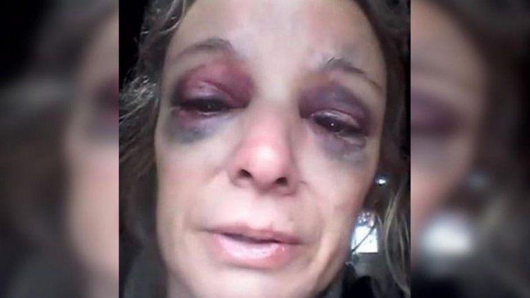 Desgarrador: se negó a tener sexo y le partió un ladrillo en la cabeza