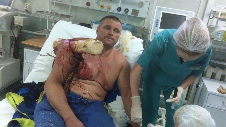 Los rescatistas tuvieron que cortar la rama y lo llevaron a un hospital.