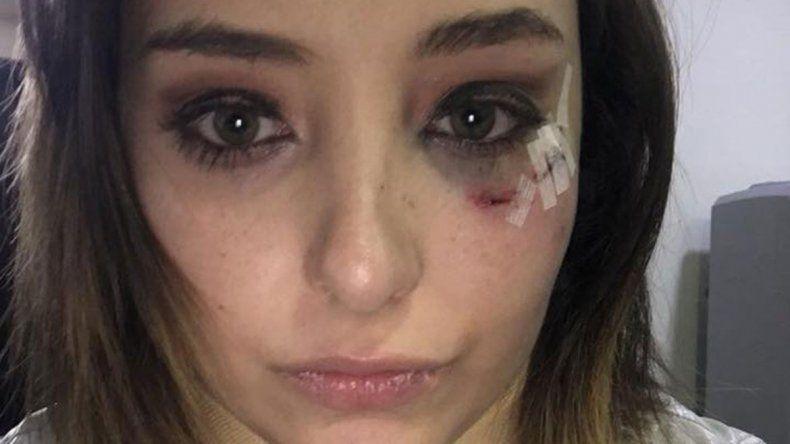 Elisa Vicedo denunció al actor acusándolo públicamente de haberla violado en varias ocasiones hace dos años.