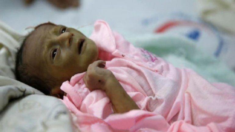 El boliviano también tiene un cuadro de parálisis cerebral e hipotermia.