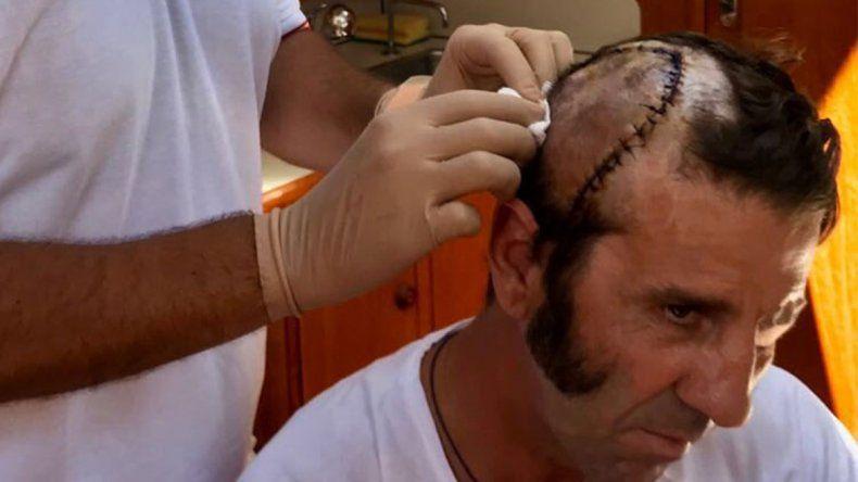 Un toro le arrancó parte del cuero cabelludo a un torero