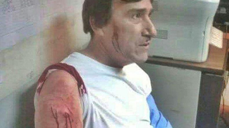 Lo hirieron en el brazo izquierdo y en la cara con un arma blanca.