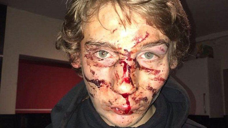 Ex rugbier creyó que le hacía bullying a su hijo y lo desfiguró