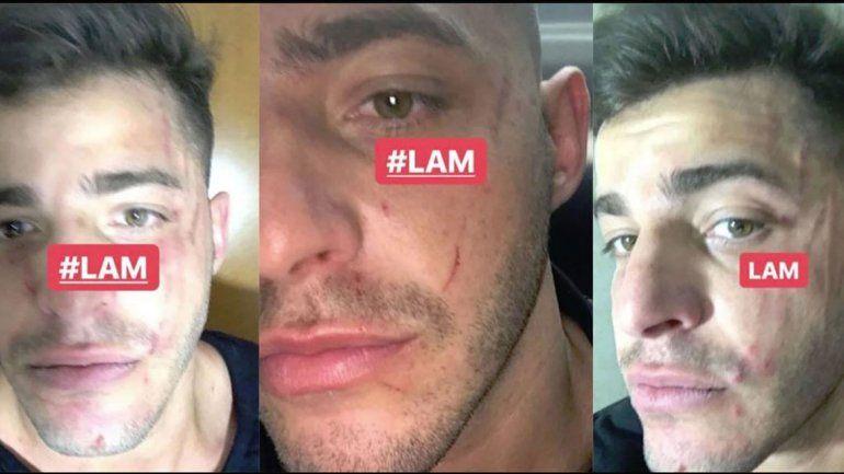 Destrozado. Lhoan le envió a De Brito fotos de cómo había quedado su rostro.