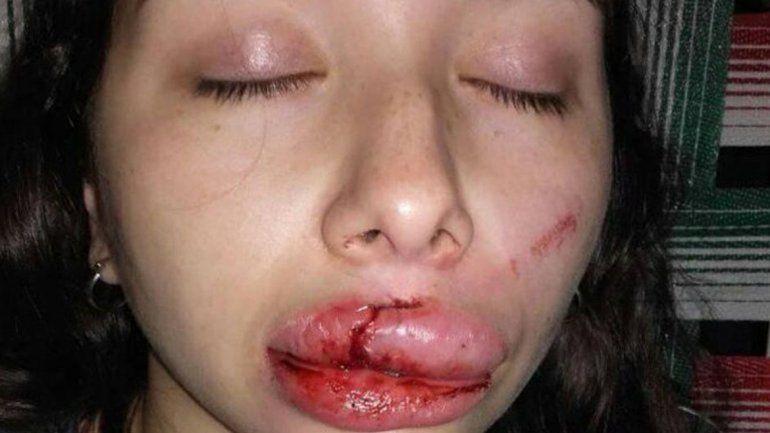 Intentaron violarla y le desfiguraron la cara