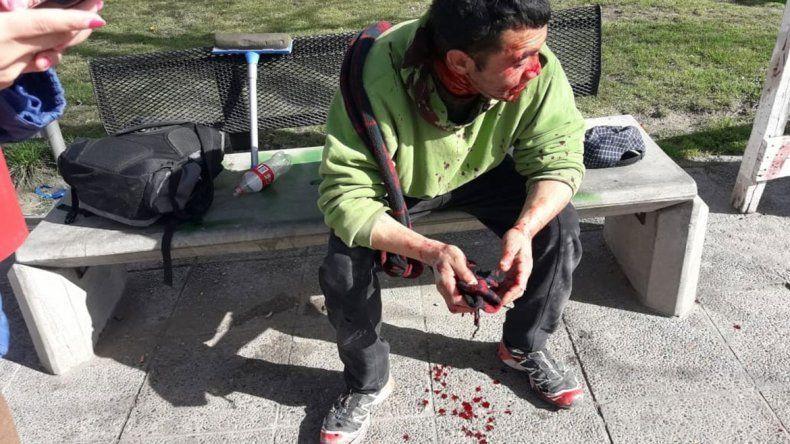 Brutal pelea entre limpiavidrios terminó con uno desmayado y casi atropellado