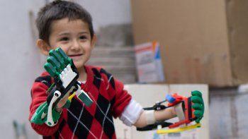 Entregarán prótesis de brazo y mano en Neuquén