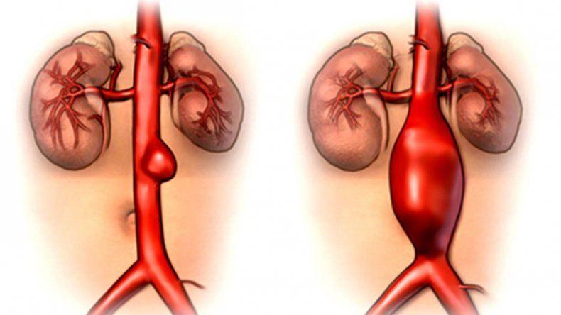 Aneurisma de la aorta, un mal que no siempre avisa