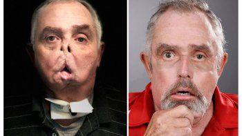 a los 64 anos le hicieron un trasplante de cara con exito