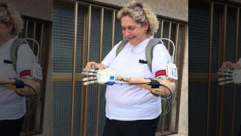 Le implantaron una mano biónica y recuperó el tacto