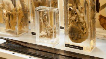 Una vasta colección de órganos con enfermedades y curiosidades.