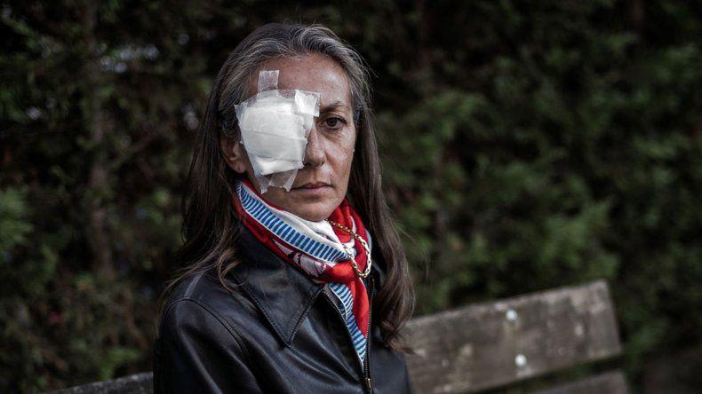 Corine Remande recibió el impacto de la pelota que viajaba a una velocidad de 240 km/h. Se quejó por la falta de atención en el lugar.