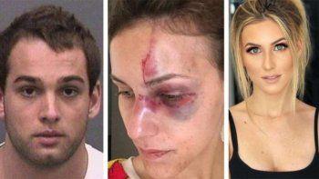 brutal golpiza de un campeon de motocross a su novia por una foto