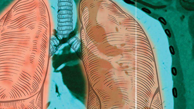 Las enfermedades neuromusculares y la respiración