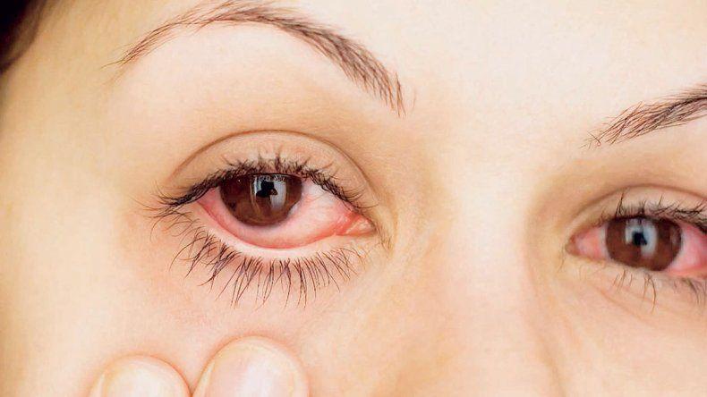 Una de cada cuatro personas presenta reacciones ante estos tóxicos.