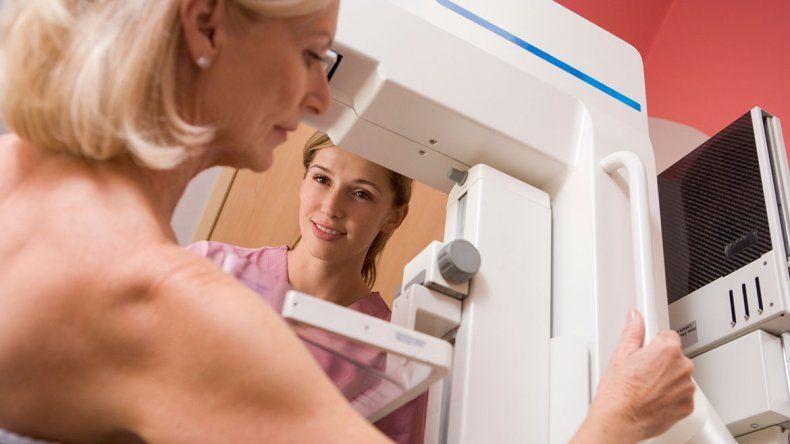 La mama densa, una condición que incide en el riesgo de cáncer