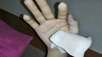 fue por un cuadro gripal y casi pierde un dedo