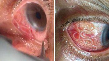 le sacaron del ojo un gusano vivo de unos 15 centimetros
