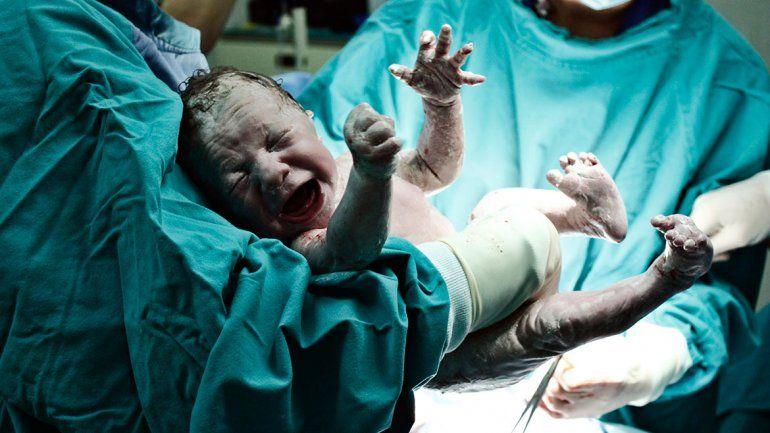 ¿Hay chances de un parto natural después de una cesárea?