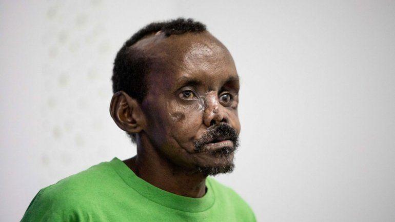 Una hiena lo desfiguró y le hicieron la cara de nuevo