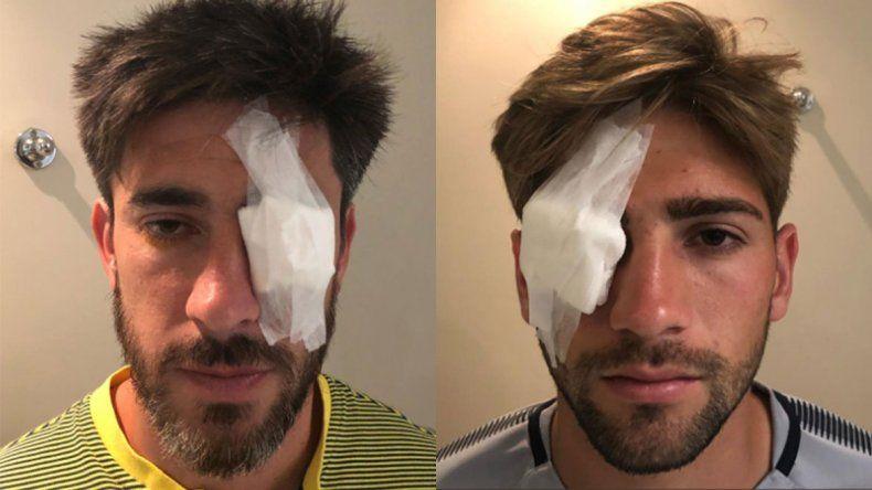 Cómo quedaron los jugadores Pérez y Lamardo tras los incidentes