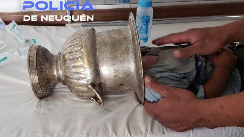 Un bebé llegó al hospital Heller con una vasija metálica atorada en la cabeza
