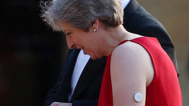 Diabetes: el botón blanco que salva  a Theresa May