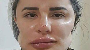 cirujano plastico les arruino la cara de por vida