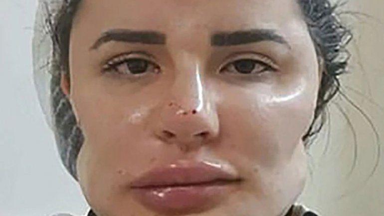Cirujano plástico les arruinó la cara de por vida