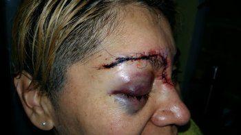 ataco a golpes a su mama y desfiguro a una sargento
