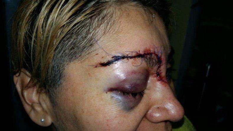 Atacó a golpes a su mamá y desfiguró a una sargento